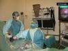 artroscopia2
