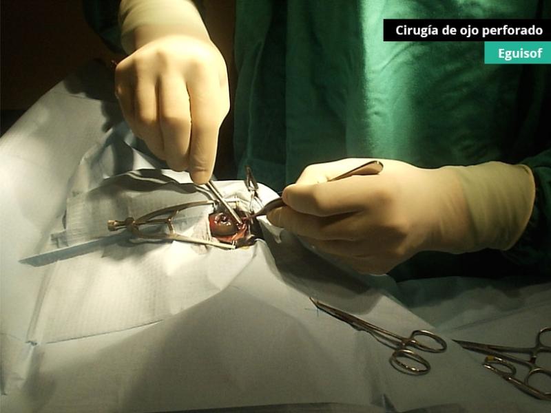 cirugia-de-ojo-perforado